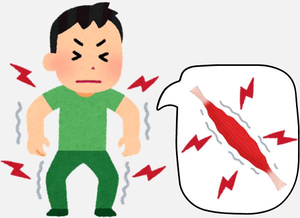筋肉痛の仕組み
